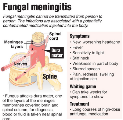 Bacterial Meningitis: Types, Symptoms, Causes, and Treatment