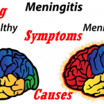 Meaning, Types, Causes & Symptoms Of Meningitis – Top Facts About Meningitis